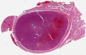 Hurthle cell adenoma (Thyroid) [1181/1]