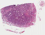 Pheochromocytoma (Adrenal) [1181/10]