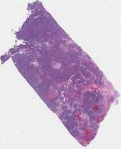 Favor spindle cell mesothelioma (Lung (pleura)) [1182/10]