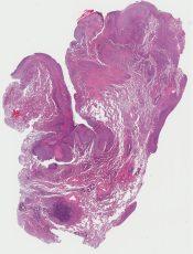 Mesothelioma (Lung (pleura)) [1182/7]