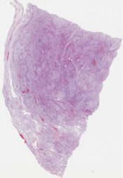 Mesenchymoma It looks like nodular fasciitis to me (Placenta) [1183/1]