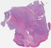 Ameloblastic fibroma (Jaw) [1183/2]