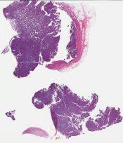 Intracystic papillary carcinoma (Breast) [1183/3]