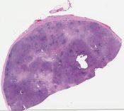 Hodgkin disease, nodular sclerosis (Lymph node, axillary) [1183/5]