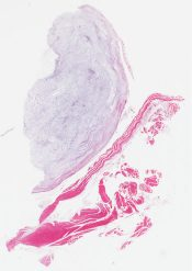 Intramuscular myxoma (Soft tissue, thigh) [1183/9]