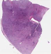 Medullary renal cell carcinoma (Kidney) [1185/6]