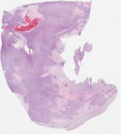 Called malignant phyllloides tumor (but there is no epithelial component in the Seminar slide) (Breast) [1186/3]