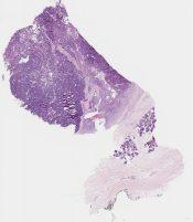 Acinic cell carcinoma (Salivary gland) [1186/5]