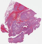 Low grade epithelioid leiomyosarcoma (Peritoenum [uterus]) [1186/6]