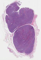 Biphasic synovial sarcoma (Soft tissue, knee) [1186/8]