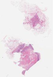 Metastatic metaplastic (squamous cell) carcinoma c/w breast origin (Lymph node, axilla [breast]) [1187/4]