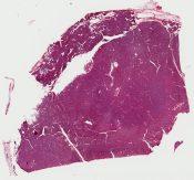 Called adenomyoepithelioma  It looks like a pure adenoma to me (Breast) [1187/7]