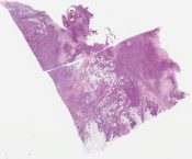 Infiltrating high grade ductal carcinoma (Breast) [1187/8]