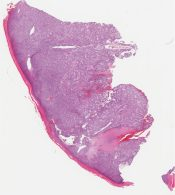GIST (with marked cytoplasmic vacuolization) (Stomach) [1189/10]