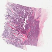 Ewing sarcoma (Bone) [1192/10]