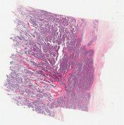 Ewing sarcoma (Bone) [1192/10]