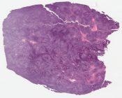 Called adamantinoma Diff DX: Monophasic synovial sarcoma (Bone (leg)) [1192/13]