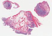 Bizarre osteochondromatous proliferation (Nora's lesion) (Bone, finger) [1192/20]