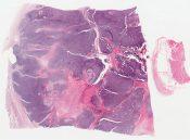 Mesenchymal chondrosarcoma (Bone) [1192/4]