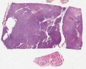 Columnar cell carcinoma (Thyroid) [1193/2]