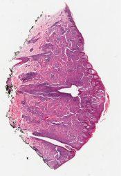 Spitz nevus (Skin, face) [1194/12]