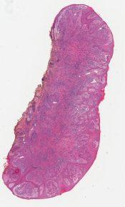 Spiz nevus with halo reaction (Skin, ear) [1194/13]