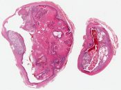 Pilar tumor  It looks clearly malignant to me (Skin, nape of neck) [1194/3]