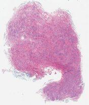 Myofibroblastoma (Breast (male)) [1195/3]
