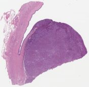 Adenosquamous carcinoma with glassy cell and signet ring cell features (Cervix) [1198/11]