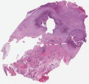 squamous cell carcinoma an clear cell adenocarcinoma arising in endometriosis (Fallopian tube (adnexae)) [1198/2]