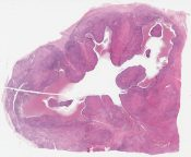 Endomyometriosis (uterus-like lesion) (Pelvis [ovary]) [1198/6]