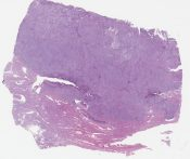 Endometrioid adenocarcinoma with squamous differentiation (Corpus) [1198/7]