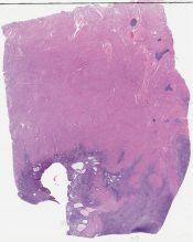 Low-grade endometrial stromal sarcoma (Corpus) [1198/8]
