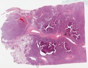 Hodgkin lymphoma (Lung) [1199/13]