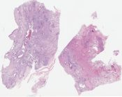 Burnt-out sarcoidosis (Lung) [1199/3]