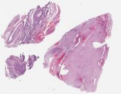 Pleuropulmonary blastoma (one with the appearance of Mark's mesenchymal cystic hamartoma and the other rhabdomyoma-like) (Lung (2 cases)) [1199/5]