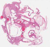 Adult polycystic kidney (Kidney) [1203/2]
