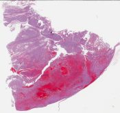 Papillary renal cell carcinoma (Kidney) [1203/6]