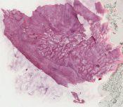 Myositis ossificans (Soft tissues) [124/12]