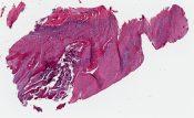 Parosteal osteosarcoma (Bone) [124/18]