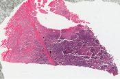 Ewing's sarcoma (Bone, fibula) [124/6]
