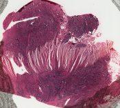 Carcinoid (Small bowel) [126/16]