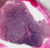 Carcinoid (Ovary) [132/4]