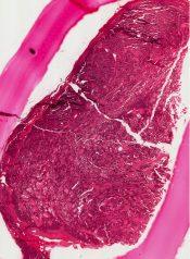 Islet cell tumor (Pancreas) [132/8]