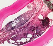 Pneumatosis cystoides intestinalis (Large bowel) [133/22]