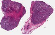 Inflammatory pseudotumor (lymph node) [1334/1]