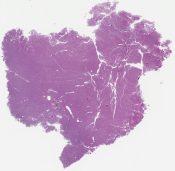 """Granulocytic sarcoma (""""chloroma~, chronic myelogenous leukemia), (femur) [1334/2]"""