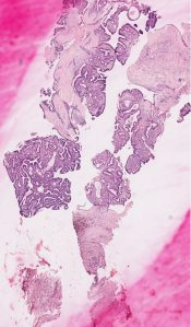 Intraductal papilloma(tosis) (Breast) [134/11]