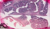 Intraductal papilloma(tosis) (Breast) [134/9]