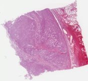 Leiomyoma, (lung) [1341/6]